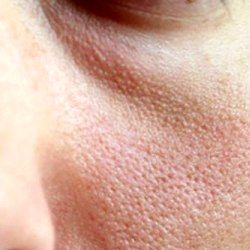 چطور می توانیم منافذ باز پوست را از بین ببریم؟