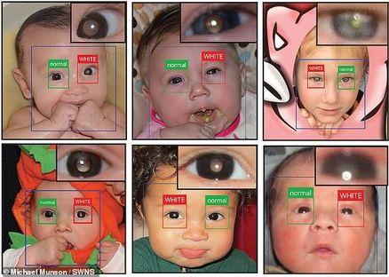 تشخیص سرطان نادر چشم تنها با یک برنامه