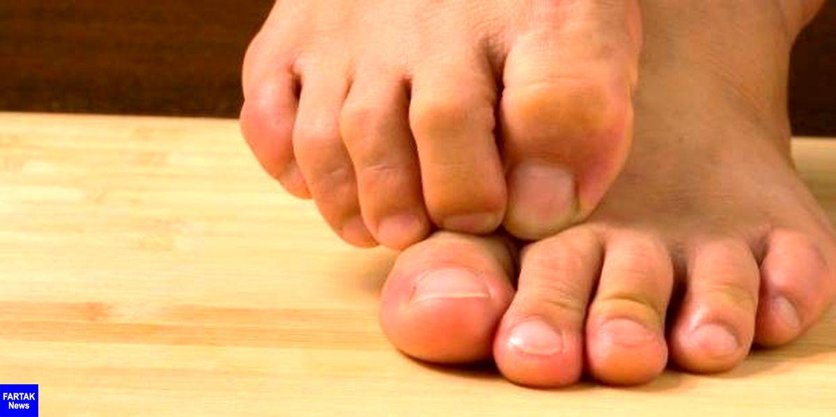13 علت احتمالی برای بیحسی و گزگز پاها