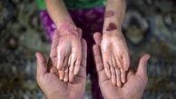 هیچ مشکلی در تأمین پانسمان بیماران «پروانهای» وجود ندارد