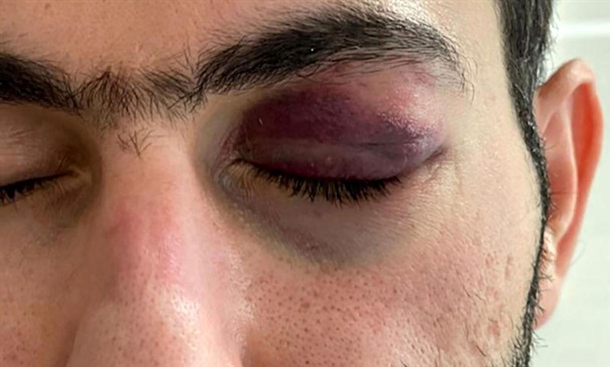 عامل حمله دردناک به پزشک بندرعباسی بازداشت شد+عکس