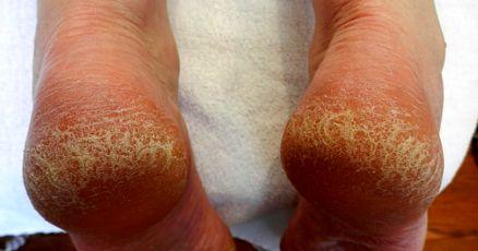 ترک پاشنه پا به چه علت ایجاد می شود؟