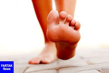 از علت تا درمان صافی کف پا