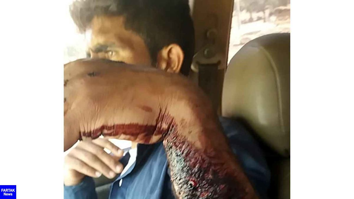 خرس وحشی دست مرد خوزستانی را درید