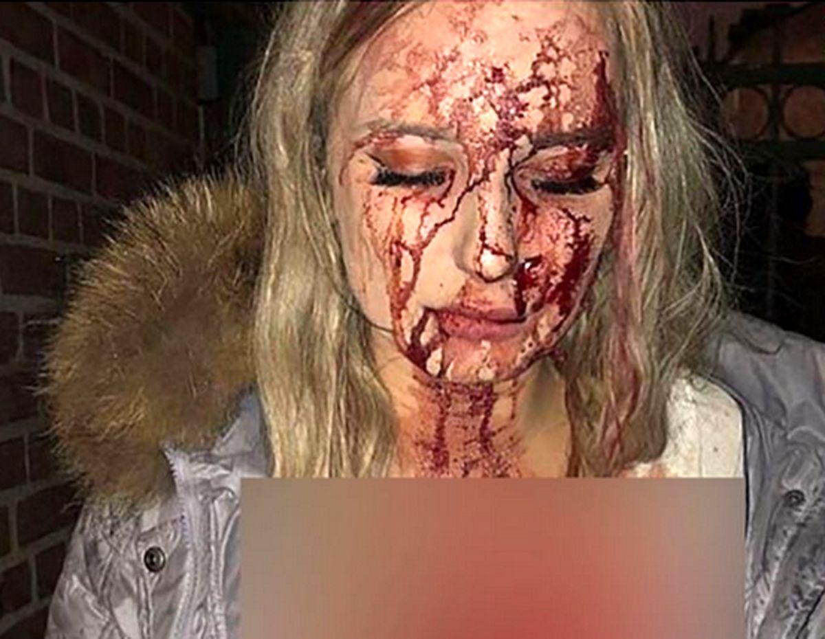 این دختر برای فرار از دام مرد شیطان صفت تا حد مرگ کتک خورد!!