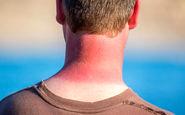 آشنایی با راههای درمان آفتاب سوختگی