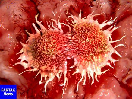سرطان خون با پیوند خانوادگی در ارتباط است