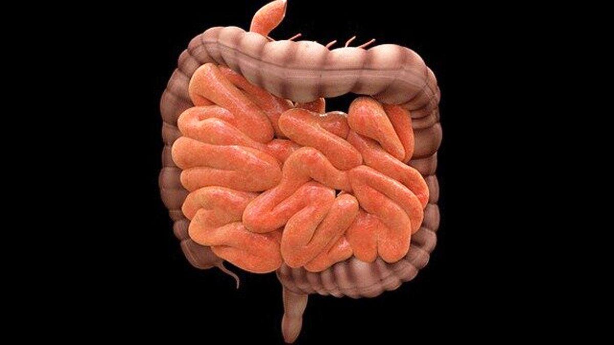 رژیمهای غذایی مضر برای روده بزرگ