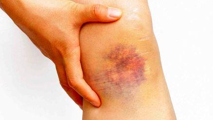 کبودی پوست نشانه یک بیماری است