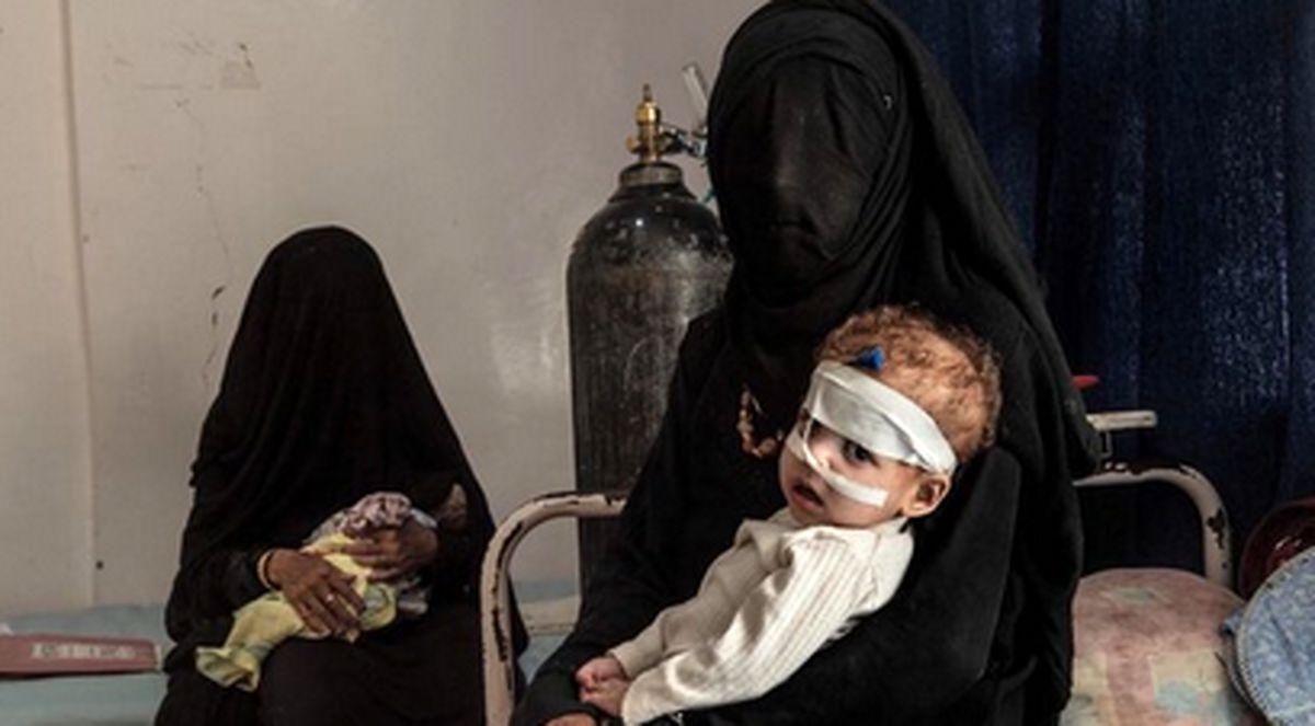 هشدار یونیسف در خصوص وضعیت نابسامان کودکان یمنی