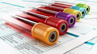 شایع ترین نشانه های غلظت خون+ راه درمان