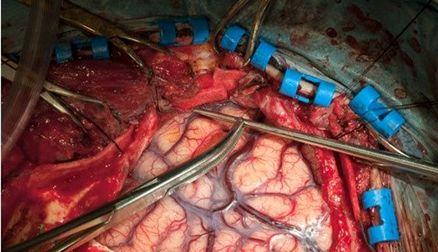 بهترین زمان برای درمان سکته مغزی حاد