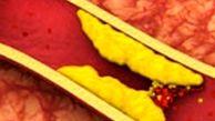 چطور با تغذیه کلسترول را کنترل کنیم؟