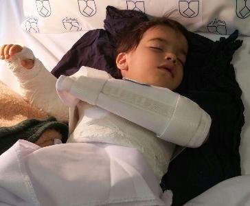 اشتباه فجیع پزشکی/دست چپ کودک اصفهانی به جای دست راستش جراحی شد !