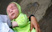 تولد نوزاد بدون چشم در روسیه!