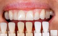 برنامه «خانواده» کانال کردی شبکه سحر؛ درباره لمینت وکامپوزیت دندان صحبت می کند