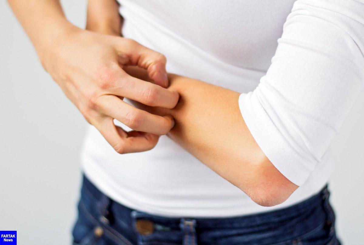 راههای درمان اگزما را بشناسیم