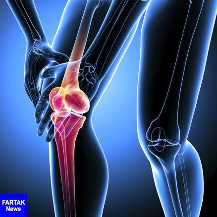 کبودی استخوان+ نشانه ها، دلایل و درمان