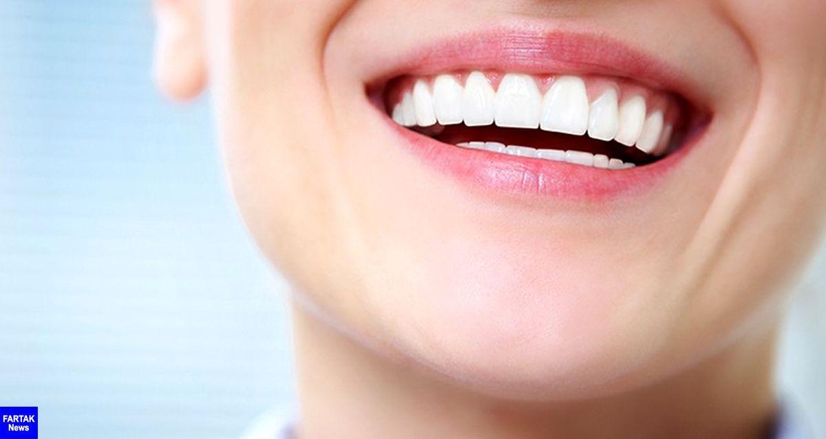 10 روش طبیعی برای سفیدکردن دندانها