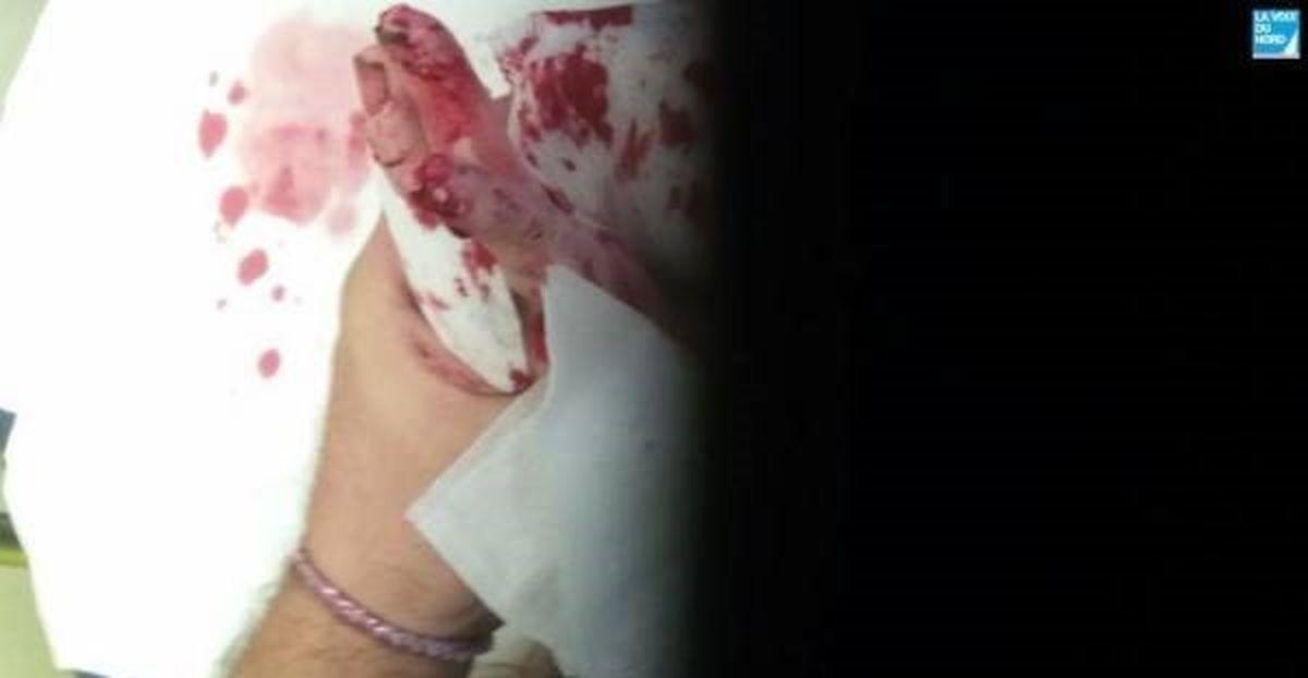 دختر 14 ساله زنده زنده خوراک موش ها شد! + تصاویر