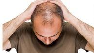 این ترکیب ریزش مو را قطع می کند