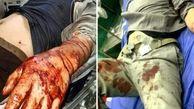 مصدومیت ۵ محیط بان مازندران براثر حمله شکارچیان غیرمجاز