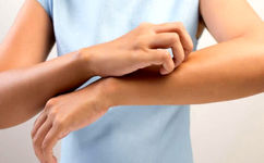 با این راهکارها از خارش پوست در زمستان خلاص شوید