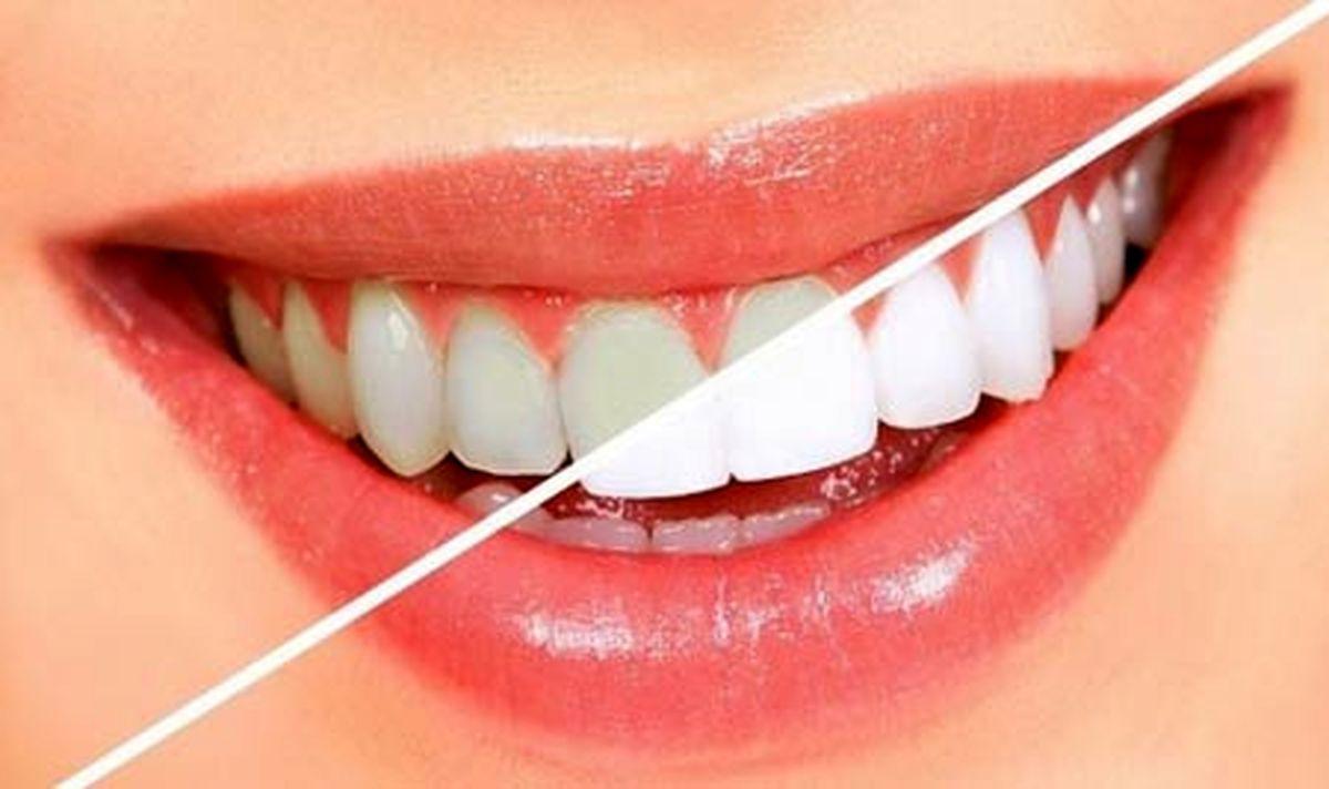 چگونه با طب سنتی دندانهایمان را سفید کنیم؟!