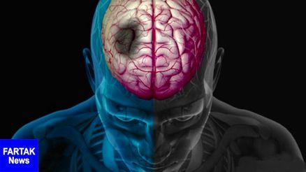 سکته مغزی در ساعات اولیه قابل درمان است