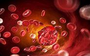 خوراکی هایی جهت بهبود گردش خون