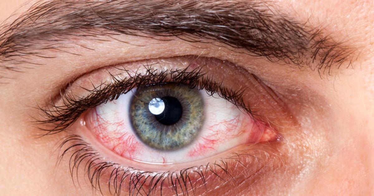 چند توصیه برای سلامت چشم ها