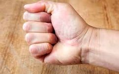 مهم ترین علل ورم انگشت ها