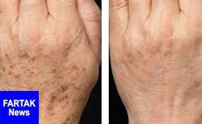 از بین بردن لکه های قهوه ای روی پوست با درمان خانگی